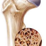عوامل و نشانه پوکی استخوان
