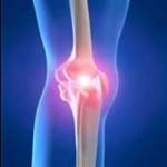 علت زانو درد در زنان