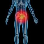 درد دنبالچه و درمان آن