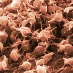 انجام سلول درمانی مفصل زانو(prp)