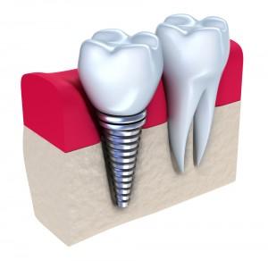 shutterstock_74442769_Single_Implant_Crowns