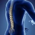روش های درمان تنگی کانال نخاع