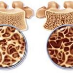 عوارض و تشخیص پوکی استخوان