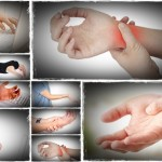 treatment for carpal tunnel syndrome